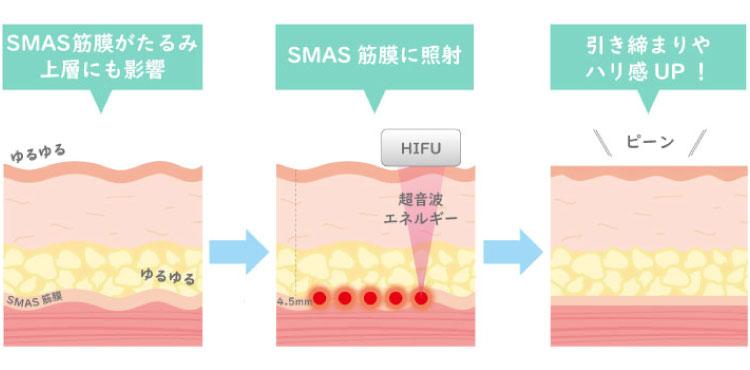ハイフ(HIFU)の原理を解説