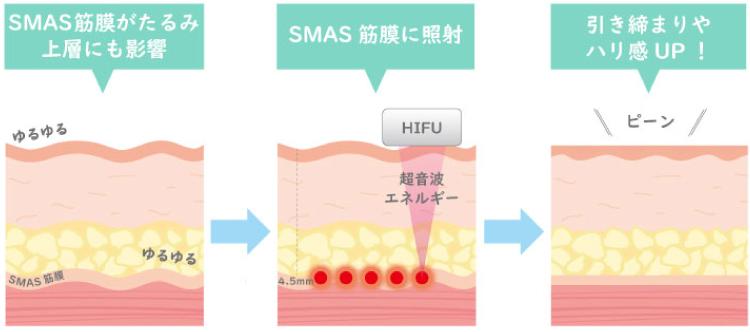 ハイフ(HIFU)の図解