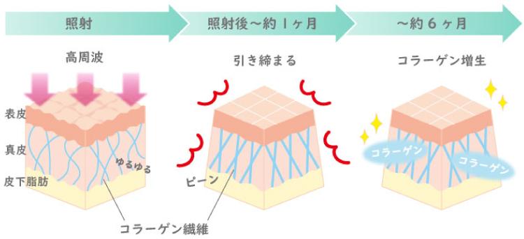 高周波(RF)の図解